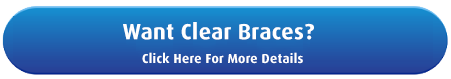 Get clear braces at Denver Orthodontists