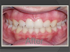 After Denver Orthodontics