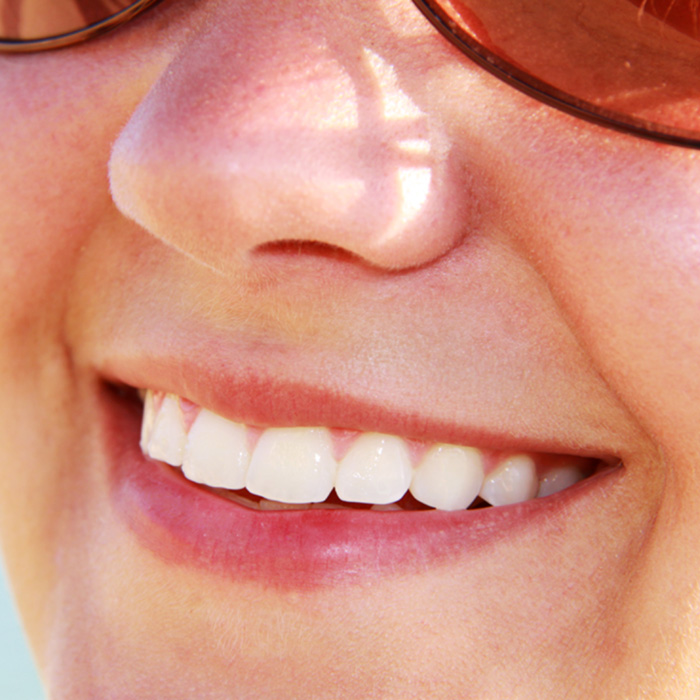 DIY Whitening After Braces? Maybe Not…