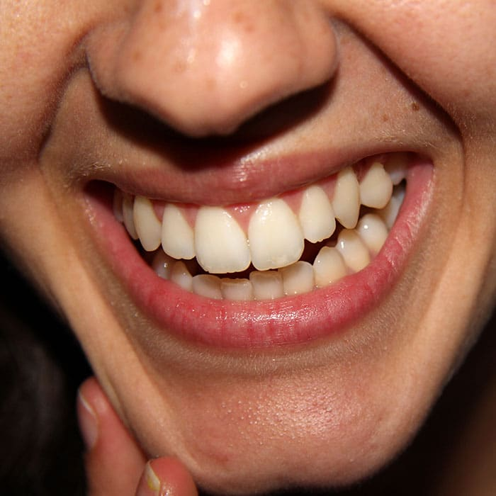 What Are Those White Spots On My Teeth?